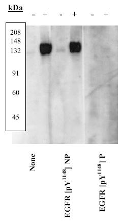 Western blot - EGFR (phospho Y1148) antibody (ab5651)