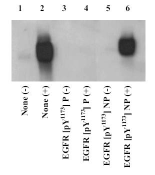 Western blot - EGFR (phospho Y1173) antibody (ab5652)