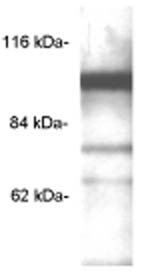 Western blot - PDE6C antibody (ab5660)