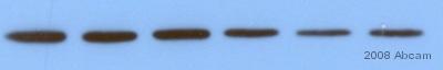 Western blot - SNAP25 antibody (ab5666)