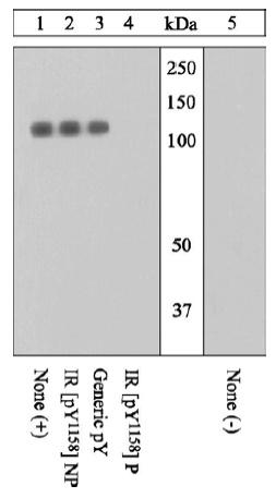 - IGF1 Receptor (phospho Y1158) antibody (ab5679)