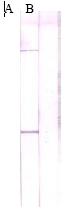 Western blot - MMP7 antibody (ab5706)