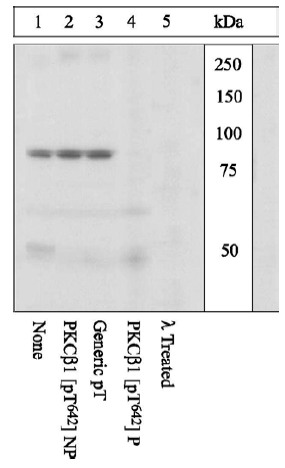Western blot - Anti-PKC beta 1 (phospho T642) antibody (ab5782)