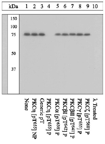 Western blot - Anti-PKC eta (phospho T655) antibody (ab5798)