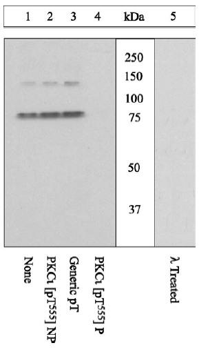Western blot - Anti-PKC iota (phospho T555 + T563) antibody (ab5813)