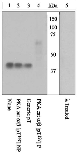 Western blot - Anti-PKA alpha + beta (catalytic subunits) (phospho T197) antibody (ab5815)