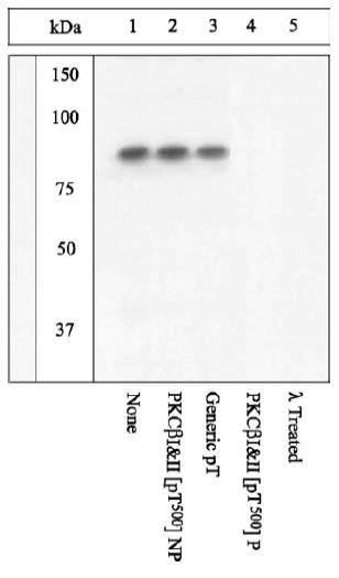 Western blot - Anti-PKC beta 1 + PKC beta 2 (phospho T500) antibody (ab5817)
