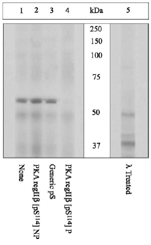 Western blot - Anti-PKA 2 beta (regulatory subunit) (phospho S114) antibody (ab5829)