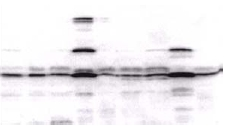 Western blot - AKT1 antibody (ab5917)