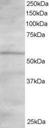 Western blot - Anti-OSBPL2 antibody (ab5921)