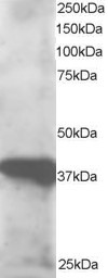 Western blot - Anti-GIPC3 antibody (ab5950)
