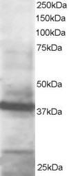 Western blot - GIPC1 antibody (ab5951)