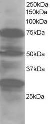 Western blot - Anti-LMO7 antibody (ab5955)