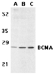 Western blot - Anti-BCMA antibody (ab5972)