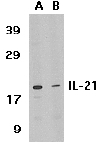 Western blot - IL21 antibody (ab5978)