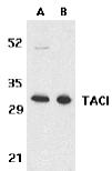 Western blot - Anti-TACI antibody (ab5994)