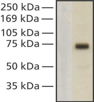 Western blot - MeCP2 antibody [Mec-168] (ab50005)