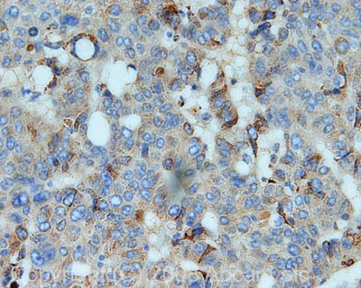 Immunohistochemistry (Formalin/PFA-fixed paraffin-embedded sections) - Apolipoprotein B antibody (ab50069)