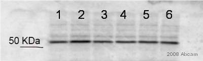 Western blot - Seryl-tRNA synthetase antibody (ab50146)