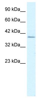 Western blot - RIMS3 antibody (ab50198)