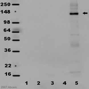 Western blot - Caspr2 antibody (ab50206)