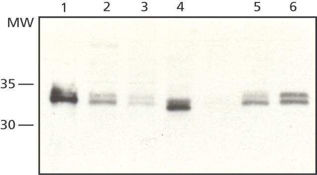 Western blot - Sprouty 2 antibody (ab50317)