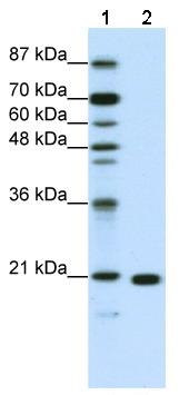 Western blot - RPL9 antibody (ab50384)