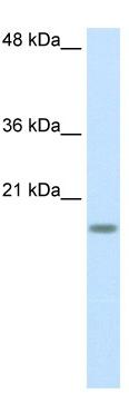 Western blot - RPS14 antibody (ab50390)