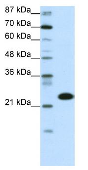 Western blot - TAF11 antibody (ab50557)