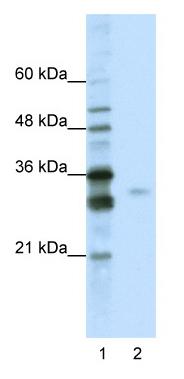 Western blot - SF2 antibody (ab50565)