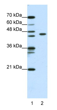 Western blot - Zinc finger and BTB domain-containing protein 9 antibody (ab50568)