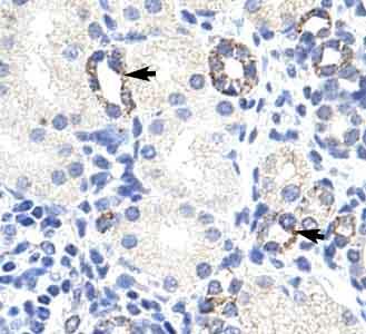 Immunohistochemistry (Paraffin-embedded sections) - ZBTB9 antibody (ab50568)