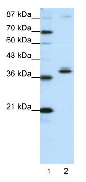 Western blot - ZNF25 antibody (ab50569)