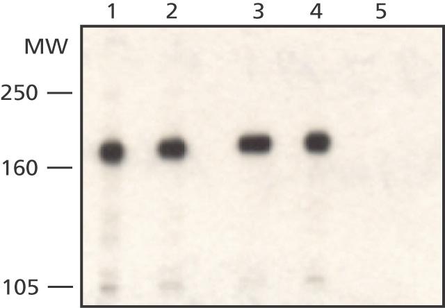 Western blot - WSTF antibody - Carboxyterminal end (ab50632)