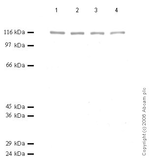 Western blot - ADAMTS6 antibody (ab50647)