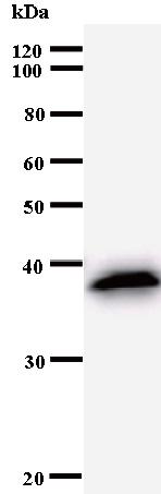 Western blot - ATF2 antibody [ATF25I062] (ab50700)