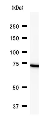 Western blot - DDX3 antibody [2253C5a] (ab50703)