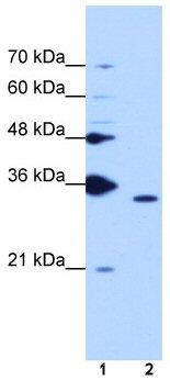 Western blot - Cyclophilin E antibody (ab50728)