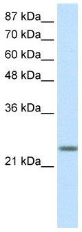 Western blot - MAD3 antibody (ab50729)