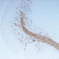 Immunohistochemistry - Anti-CNPase antibody (ab50739)