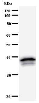 Western blot - EXOSC7 antibody [2335C2a] (ab50754)