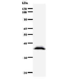 Western blot - DMAP1 antibody [2277C2a] (ab50769)