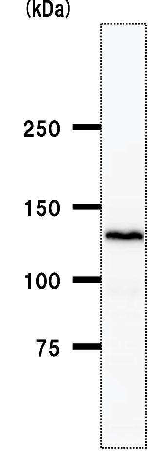 Western blot - BBX antibody [2065C12a] (ab50824)