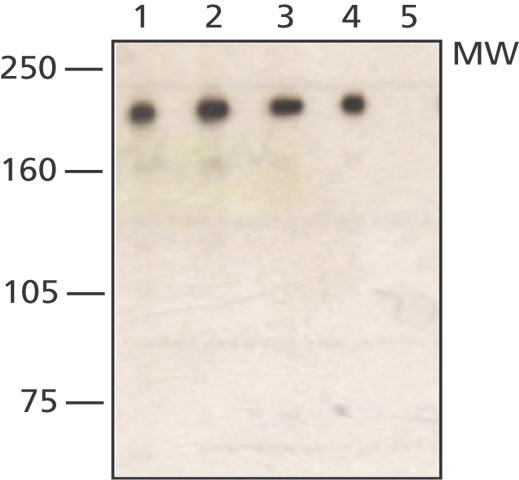 Western blot - WSTF antibody (ab50850)