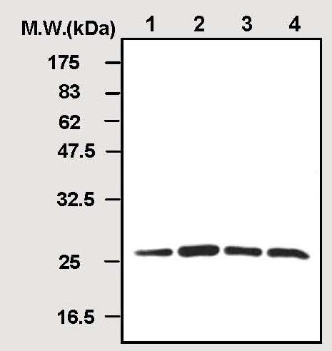 Western blot - Peroxiredoxin 2 antibody [1E8] (ab50862)