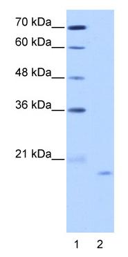 Western blot - NOL6 antibody (ab50875)