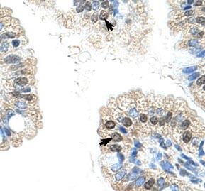 Immunohistochemistry (Paraffin-embedded sections) - NOL6 antibody (ab50875)