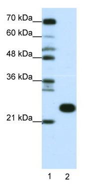 Western blot - RPL13 antibody (ab50880)