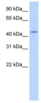 Western blot - TRNT1 antibody (ab50895)