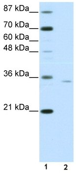 Western blot - OTP antibody (ab50897)